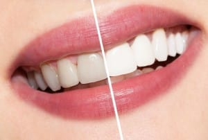 Dazzle Your Friends Through Professional Teeth Whitening